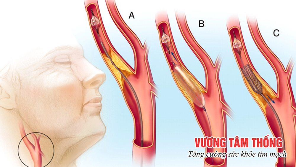 Nong mạch, đặt stent trong điều trị xơ vữa động mạch cảnh
